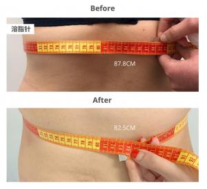BA_Fat Dissolving溶脂针2